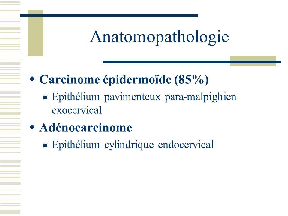 Anatomopathologie Carcinome épidermoïde (85%) Epithélium pavimenteux para-malpighien exocervical Adénocarcinome Epithélium cylindrique endocervical