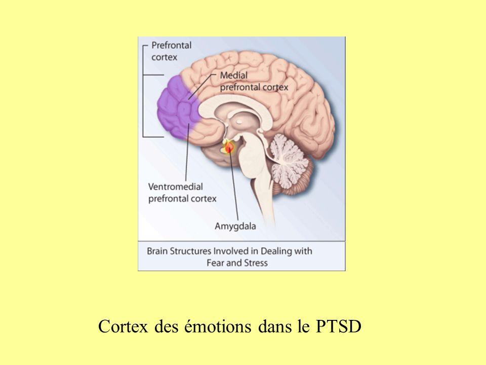 Approche psychodynamique -Hystérie post-émotionnelle (Briquet 1859) -Névrose traumatique (Oppenheim) -Hystéro-neurasthénie (Charcot): tps de latence -Hystérie traumatique (Freud): Réminiscence: abréactions répétées et inefficaces associées à la charge des affects « coincés ».