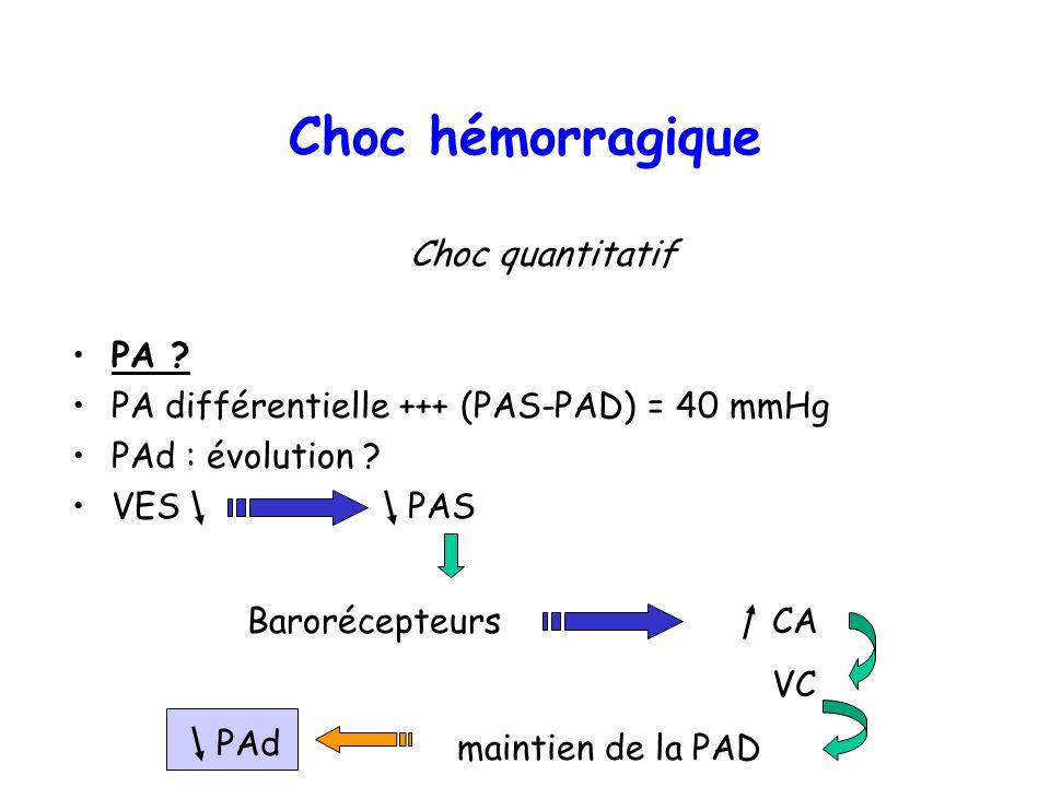 Choc quantitatif PA ? PA différentielle +++ (PAS-PAD) = 40 mmHg PAd : évolution ? VES PAS Choc hémorragique Barorécepteurs CA VC maintien de la PAD PA