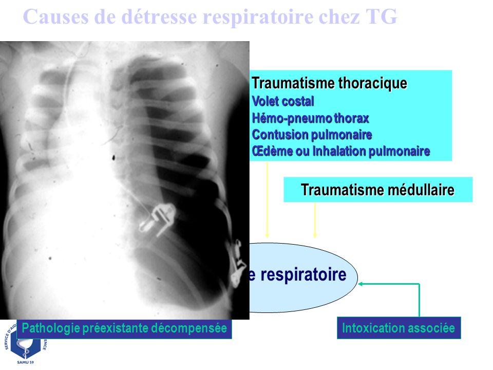 Causes de détresse respiratoire chez TG Traumatisme thoracique Volet costal Hémo-pneumo thorax Contusion pulmonaire Œdème ou Inhalation pulmonaire Tra