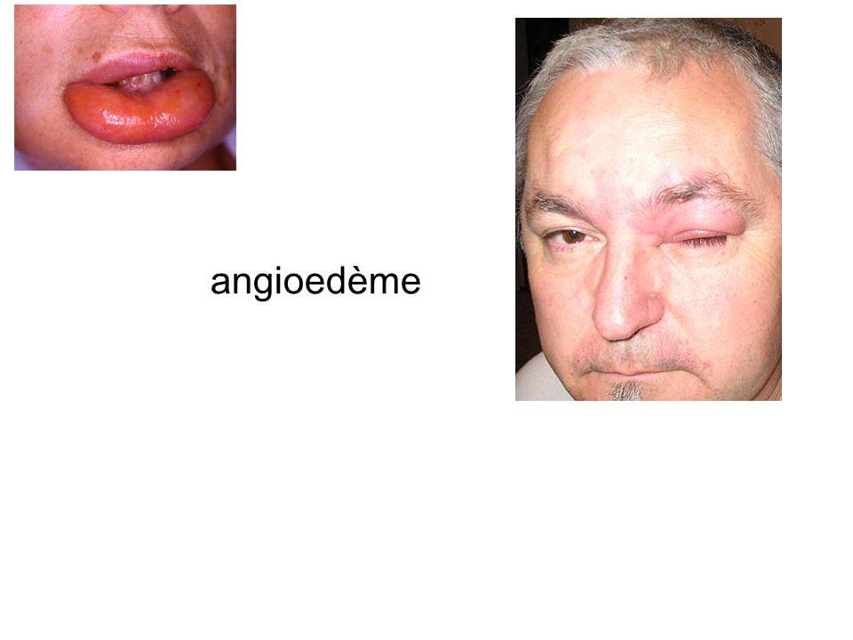 6- Traitement : Adrénaline voie IM ou IV Pas de voie SC Aérosol pas defficacité prouvée Grade 3 voie IV conseillée soumis à un médecin compétent+++