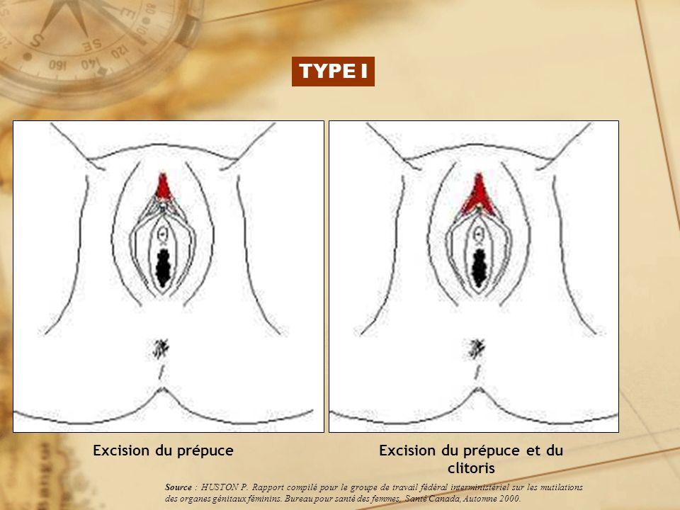 Excision du prépuce et du clitoris Excision du prépuce Source : HUSTON P. Rapport compilé pour le groupe de travail fédéral interministériel sur les m