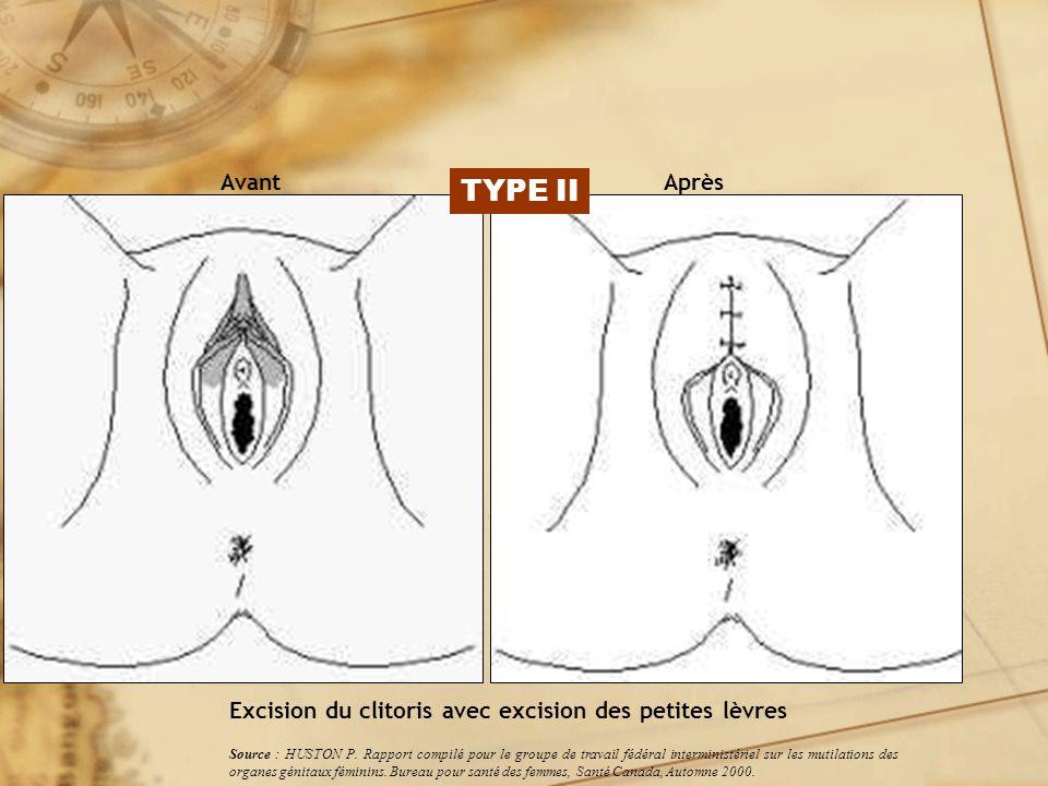 Excision du clitoris avec excision des petites lèvres AvantAprès Source : HUSTON P. Rapport compilé pour le groupe de travail fédéral interministériel