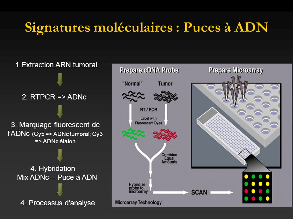 Signatures moléculaires : Puces à ADN 1.Extraction ARN tumoral 2. RTPCR => ADNc 3. Marquage fluorescent de lADNc (Cy5 => ADNc tumoral; Cy3 => ADNc éta
