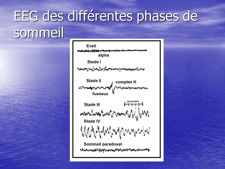 EEG des différentes phases de sommeil