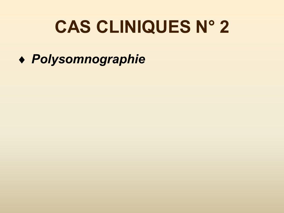 CAS CLINIQUE N° 2 ronfle Accès de sommeil dans la journée (Epworth à 12) +/- reposé par ses siestes Prise de poids récente HTA depuis 5 ans stable sous TT