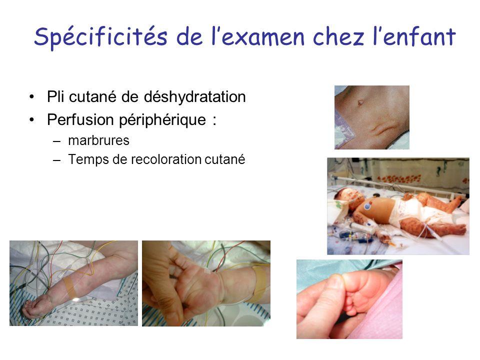Spécificités de lexamen chez lenfant Pli cutané de déshydratation Perfusion périphérique : –marbrures –Temps de recoloration cutané