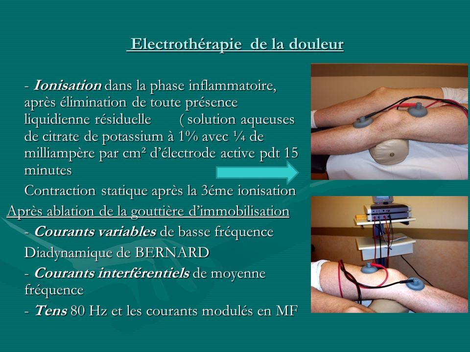 Electrothérapie de la douleur Electrothérapie de la douleur - Ionisation dans la phase inflammatoire, après élimination de toute présence liquidienne