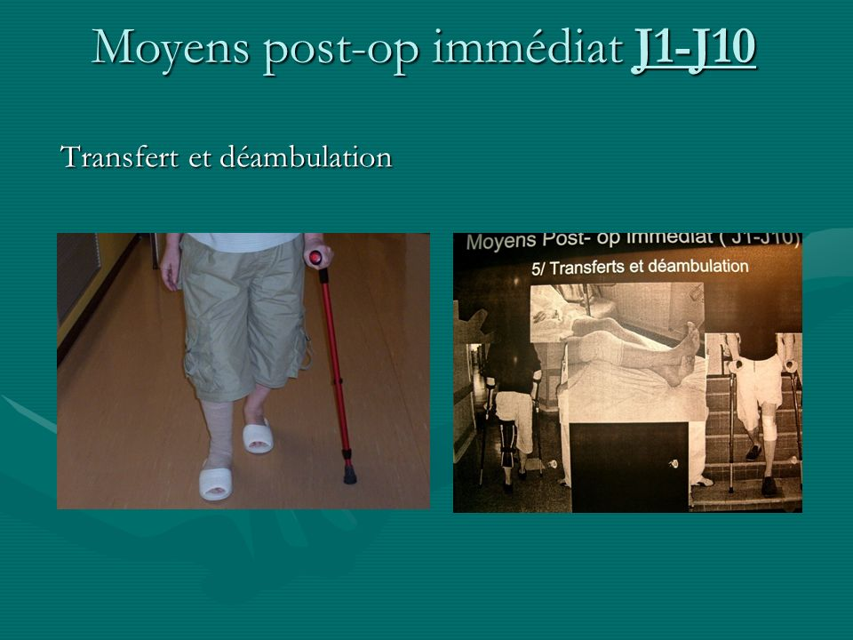 Transfert et déambulation Transfert et déambulation Moyens post-op immédiat J1-J10