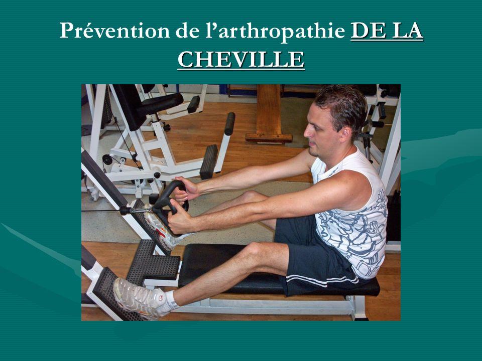 DE LA CHEVILLE Prévention de larthropathie DE LA CHEVILLE