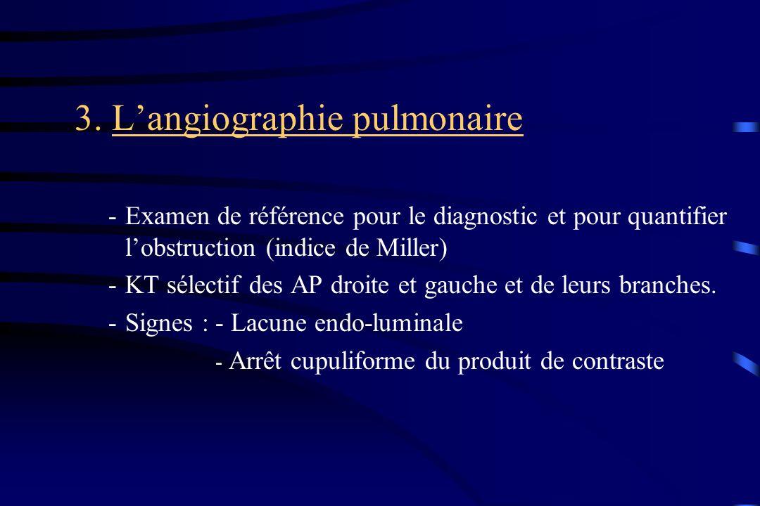 3. Langiographie pulmonaire -Examen de référence pour le diagnostic et pour quantifier lobstruction (indice de Miller) -KT sélectif des AP droite et g