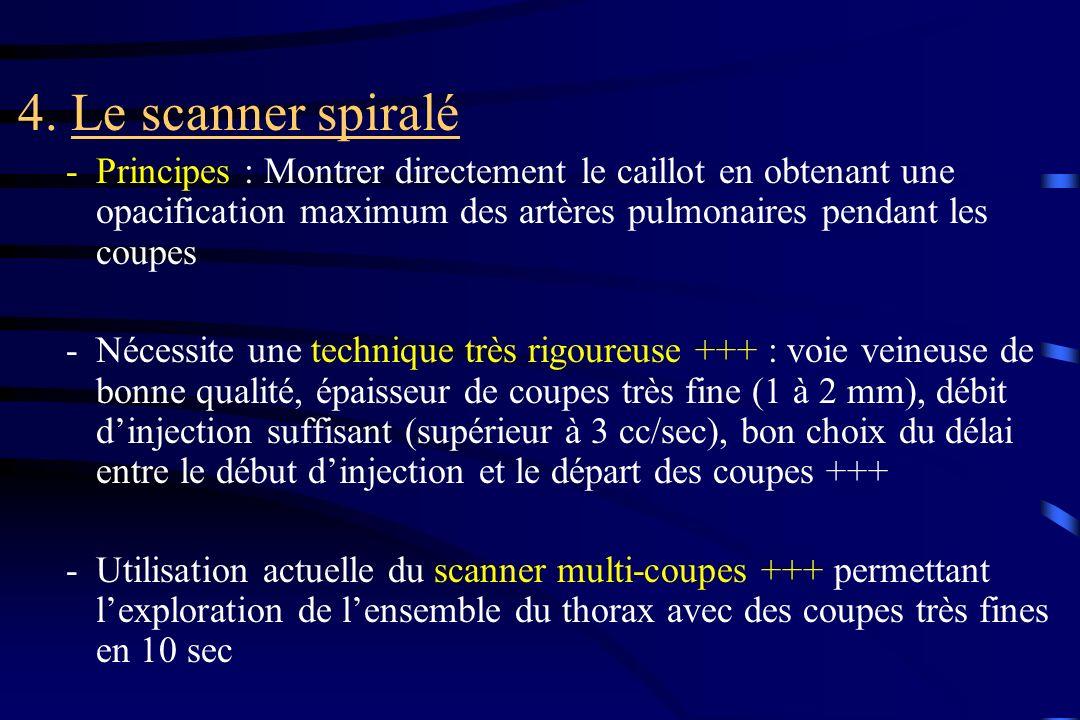 4. Le scanner spiralé -Principes : Montrer directement le caillot en obtenant une opacification maximum des artères pulmonaires pendant les coupes -Né