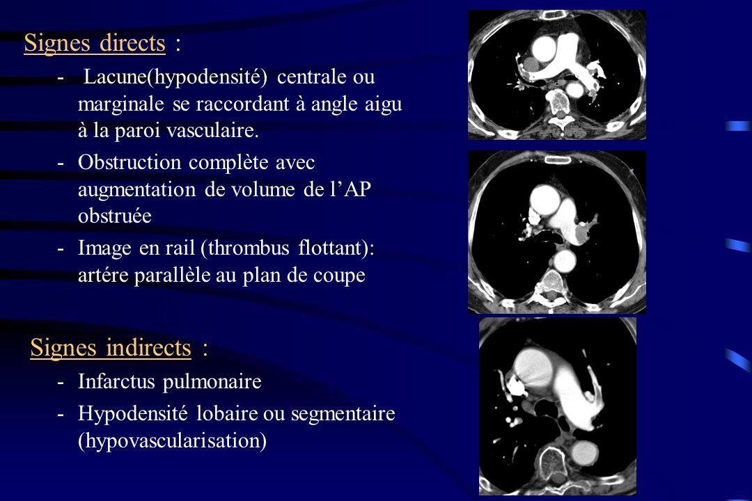 Signes directs : - Lacune(hypodensité) centrale ou marginale se raccordant à angle aigu à la paroi vasculaire. -Obstruction complète avec augmentation