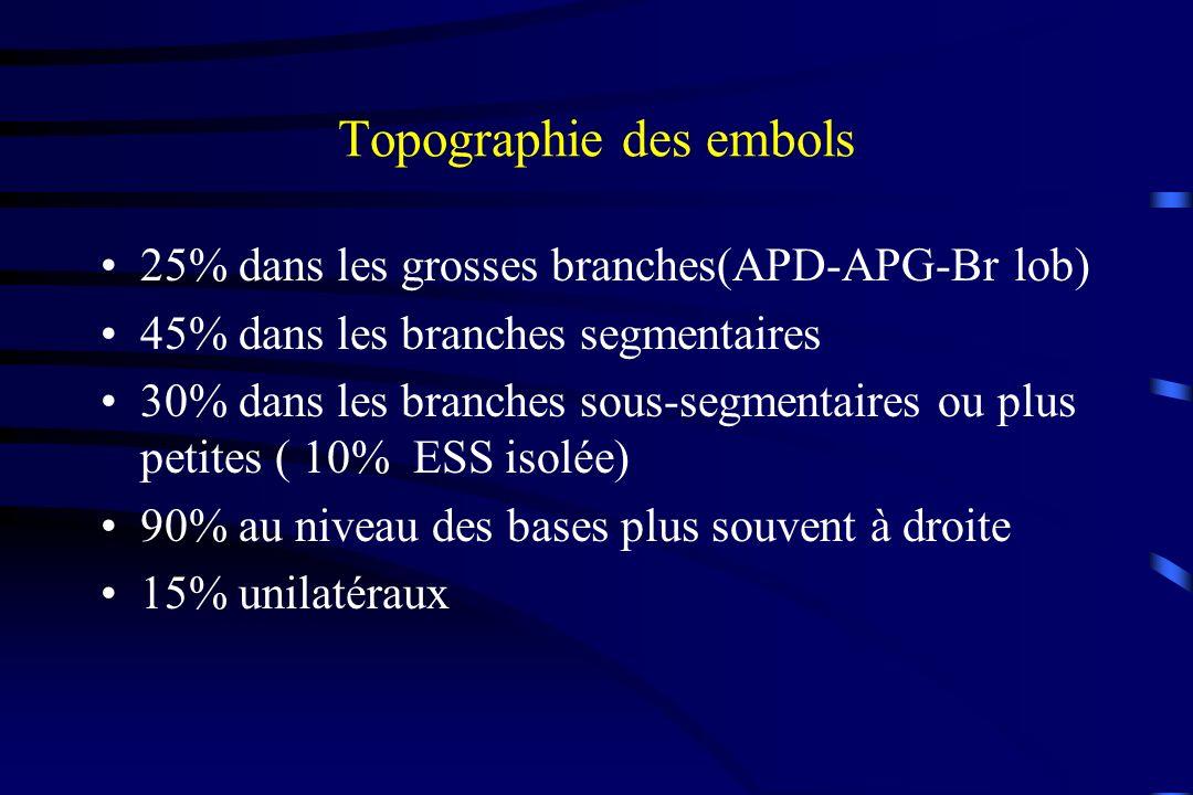 Topographie des embols 25% dans les grosses branches(APD-APG-Br lob) 45% dans les branches segmentaires 30% dans les branches sous-segmentaires ou plu
