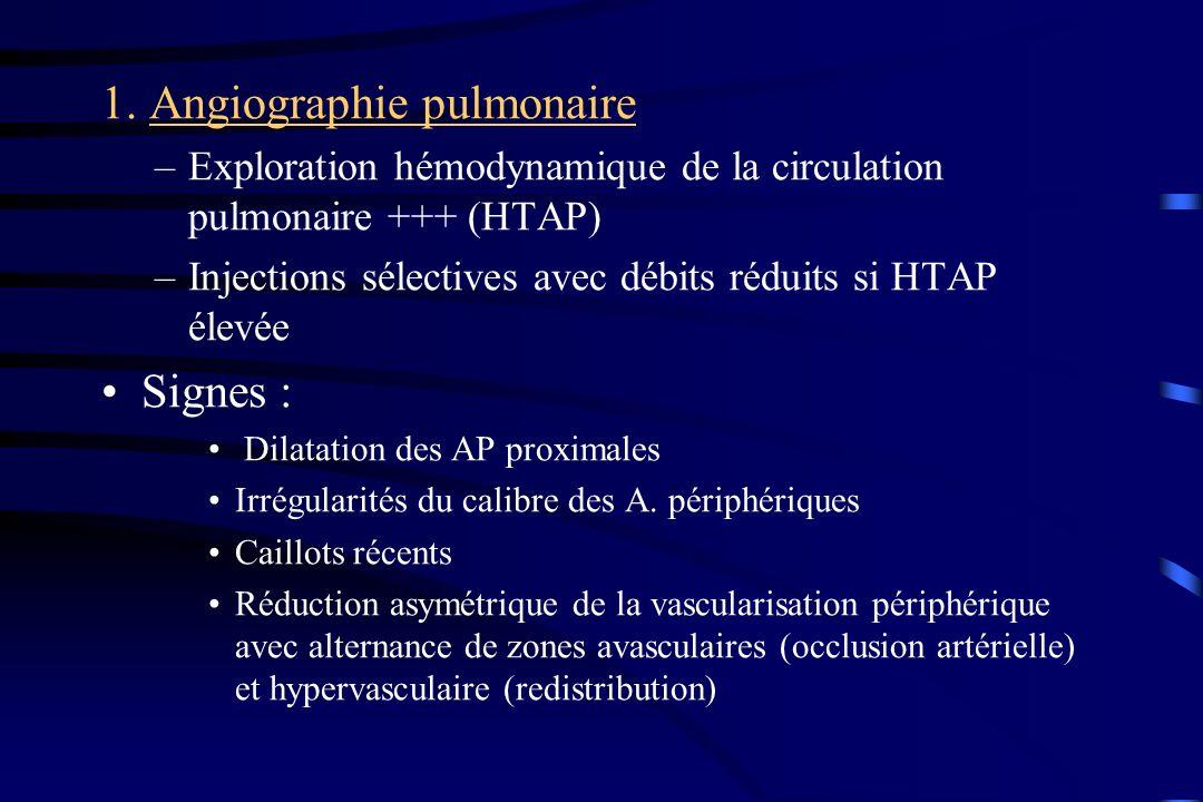 1. Angiographie pulmonaire –Exploration hémodynamique de la circulation pulmonaire +++ (HTAP) –Injections sélectives avec débits réduits si HTAP élevé