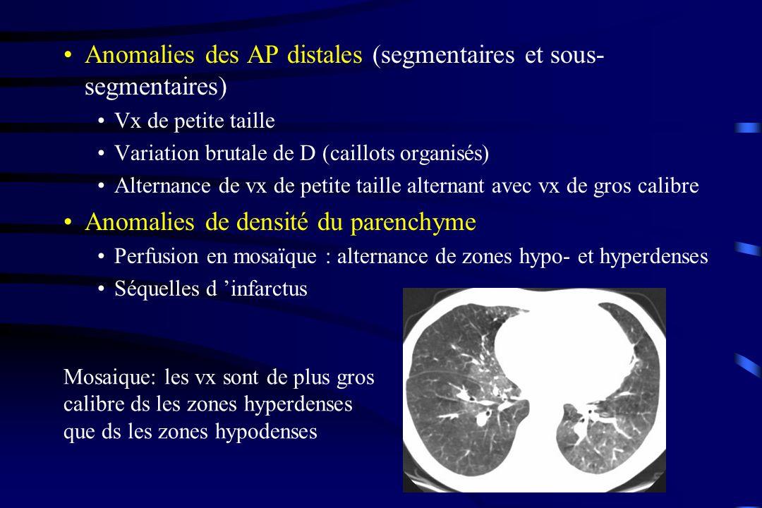 Anomalies des AP distales (segmentaires et sous- segmentaires) Vx de petite taille Variation brutale de D (caillots organisés) Alternance de vx de pet