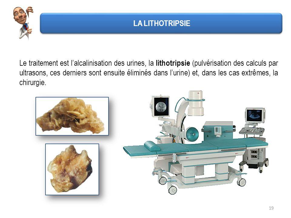 19 LA LITHOTRIPSIE Le traitement est lalcalinisation des urines, la lithotripsie (pulvérisation des calculs par ultrasons, ces derniers sont ensuite é