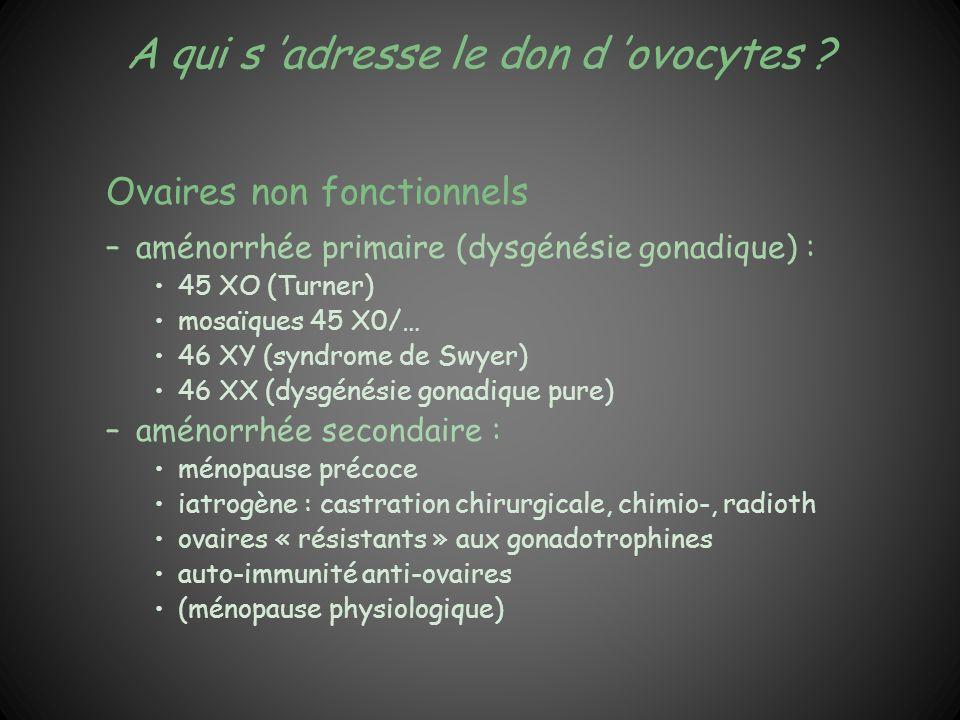 A qui s adresse le don d ovocytes ? Ovaires non fonctionnels –aménorrhée primaire (dysgénésie gonadique) : 45 XO (Turner) mosaïques 45 X0/… 46 XY (syn