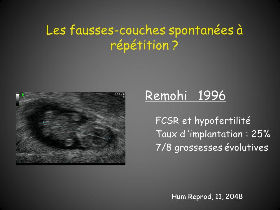 Les fausses-couches spontanées à répétition ? Remohi 1996 FCSR et hypofertilité Taux d implantation : 25% 7/8 grossesses évolutives Hum Reprod, 11, 20