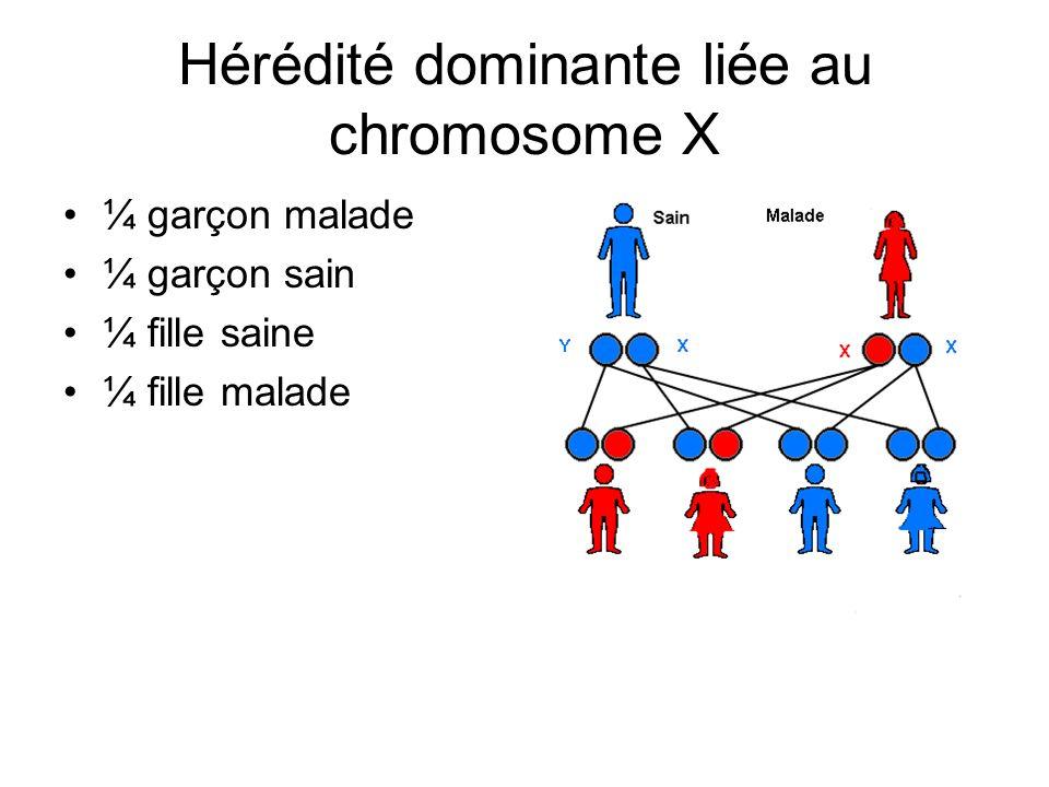 Hérédité dominante liée au chromosome X ¼ garçon malade ¼ garçon sain ¼ fille saine ¼ fille malade