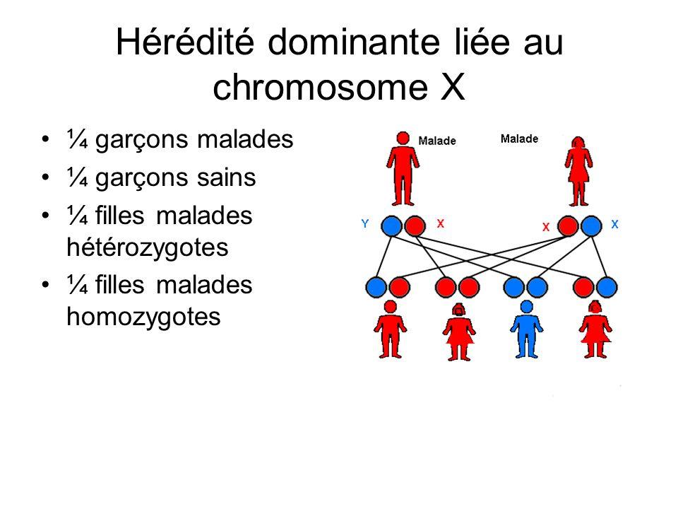 Hérédité dominante liée au chromosome X ¼ garçons malades ¼ garçons sains ¼ filles malades hétérozygotes ¼ filles malades homozygotes