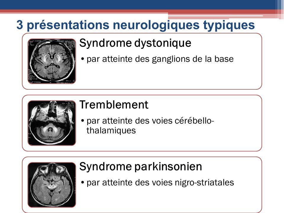Syndrome dystonique par atteinte des ganglions de la base Tremblement par atteinte des voies cérébello- thalamiques Syndrome parkinsonien par atteinte