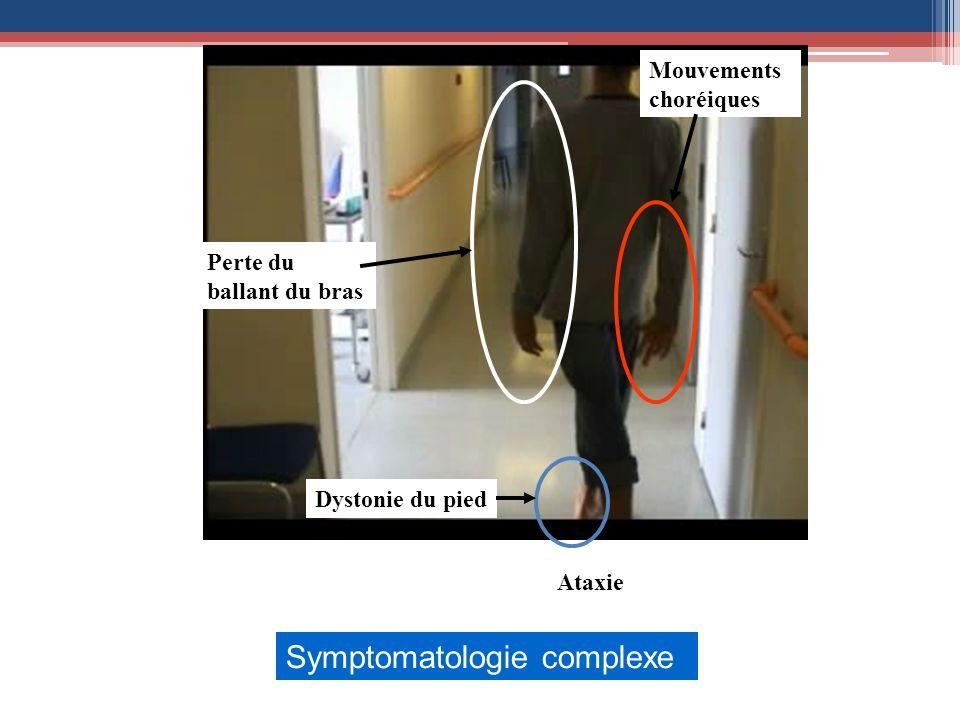 Mouvements choréiques Perte du ballant du bras Dystonie du pied Symptomatologie complexe Ataxie