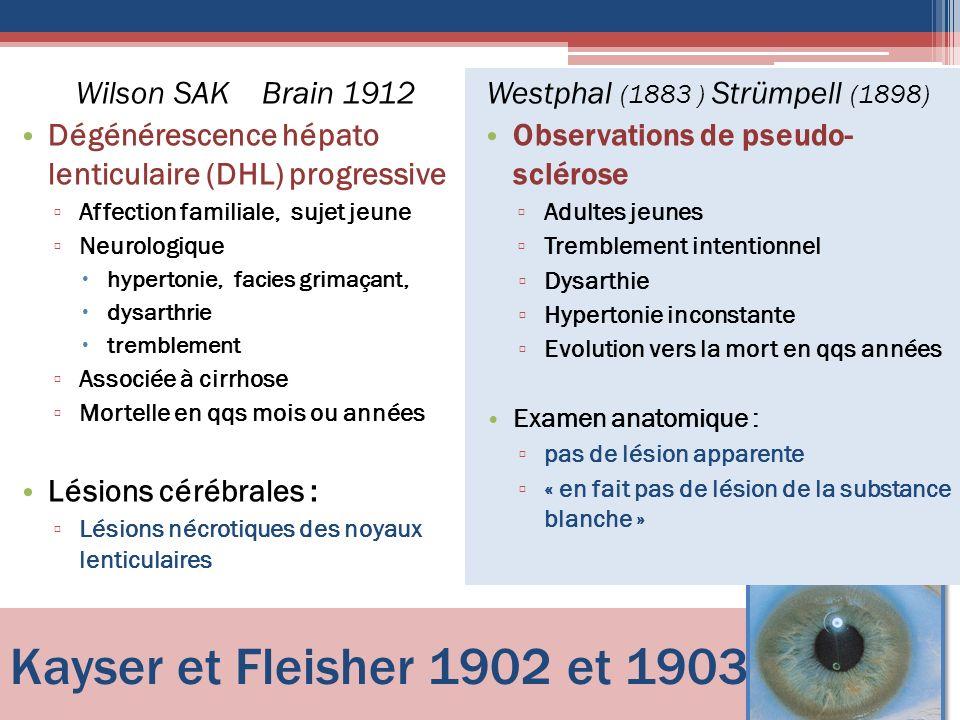 Kayser et Fleisher 1902 et 1903 Wilson SAK Brain 1912 Dégénérescence hépato lenticulaire (DHL) progressive Affection familiale, sujet jeune Neurologiq