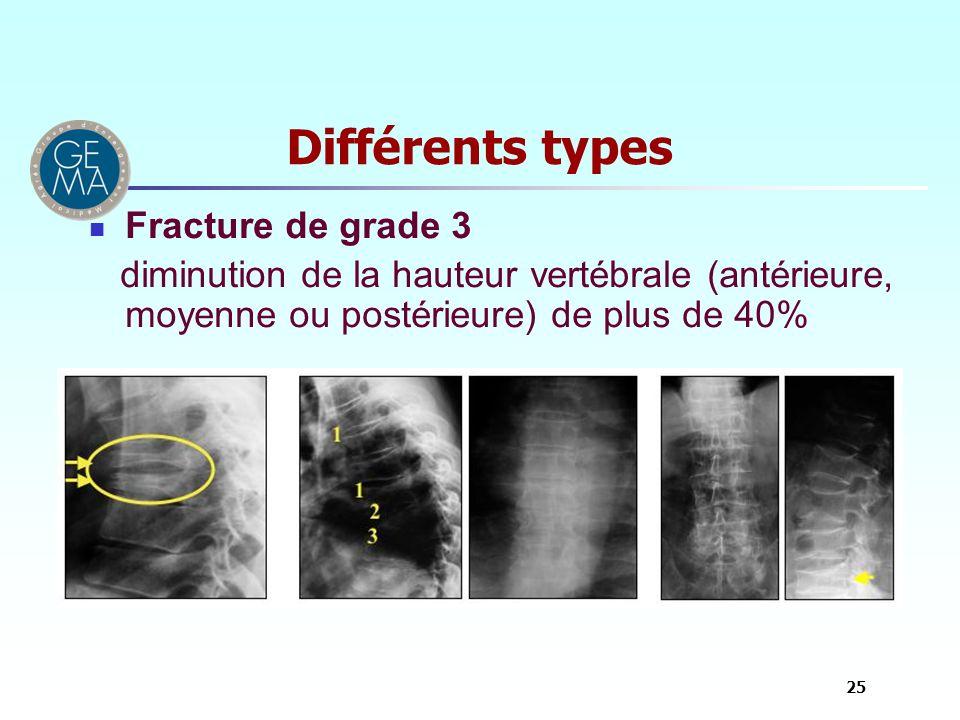 Différents types Fracture de grade 3 diminution de la hauteur vertébrale (antérieure, moyenne ou postérieure) de plus de 40% 25