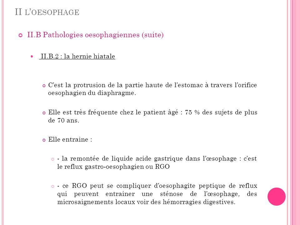 II L OESOPHAGE II.B Pathologies oesophagiennes (suite) II.B.2 : la hernie hiatale Cest la protrusion de la partie haute de lestomac à travers lorifice