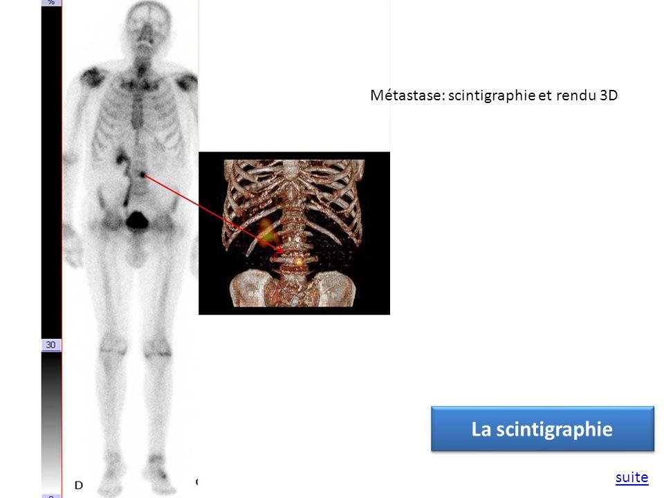 Métastase: scintigraphie et rendu 3D La scintigraphie suite