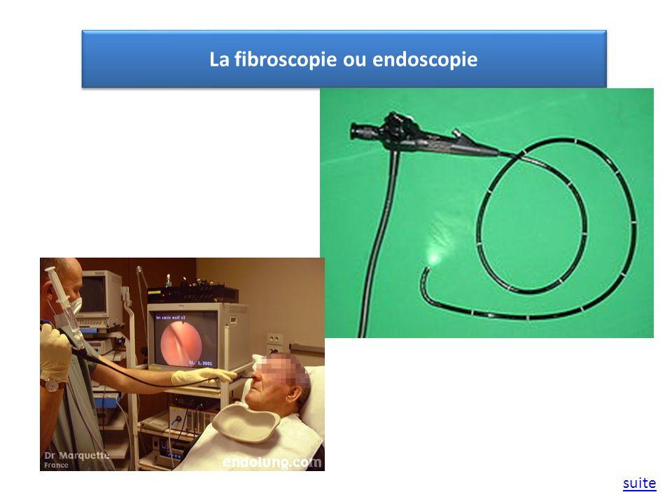 La fibroscopie ou endoscopie suite