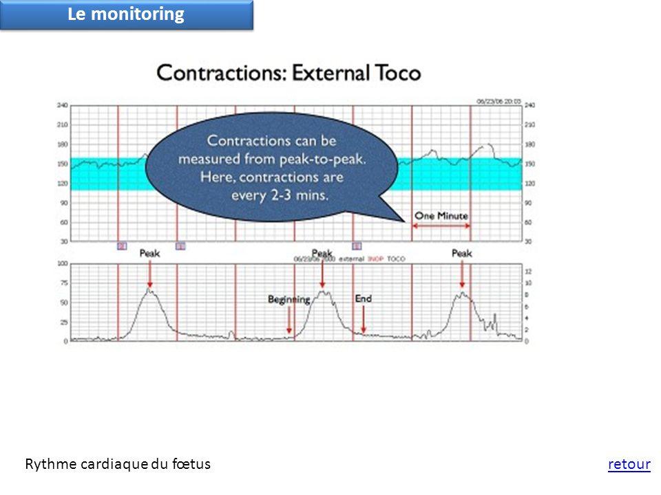 retourRythme cardiaque du fœtus Le monitoring