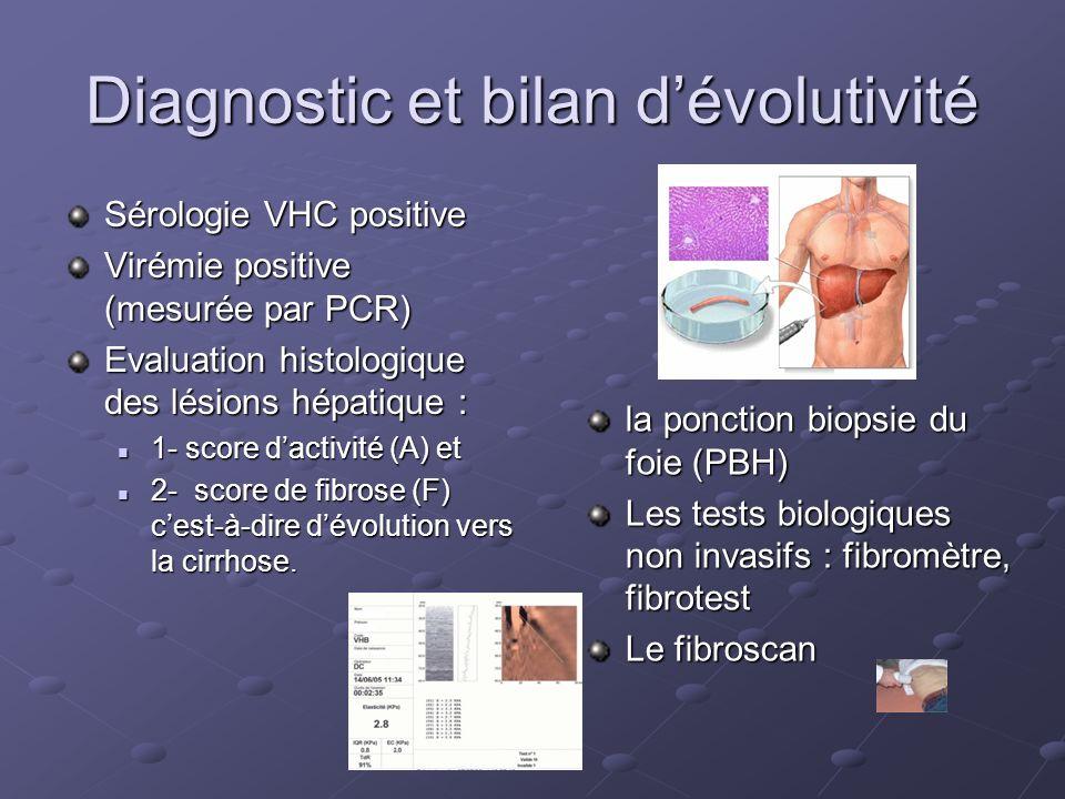 Diagnostic et bilan dévolutivité Sérologie VHC positive Virémie positive (mesurée par PCR) Evaluation histologique des lésions hépatique : 1- score da
