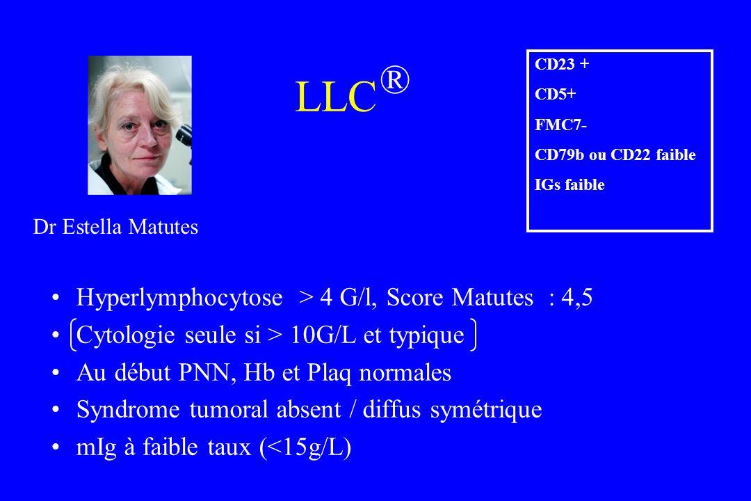 Hyperlymphocytose > 4 G/l, Score Matutes : 4,5 Cytologie seule si > 10G/L et typique Au début PNN, Hb et Plaq normales Syndrome tumoral absent / diffu