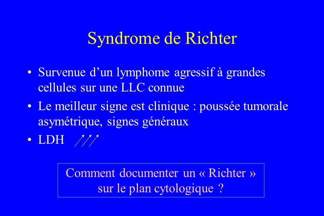 Syndrome de Richter Survenue dun lymphome agressif à grandes cellules sur une LLC connue Le meilleur signe est clinique : poussée tumorale asymétrique