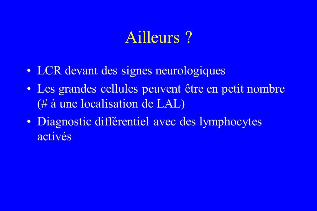 Ailleurs ? LCR devant des signes neurologiques Les grandes cellules peuvent être en petit nombre (# à une localisation de LAL) Diagnostic différentiel