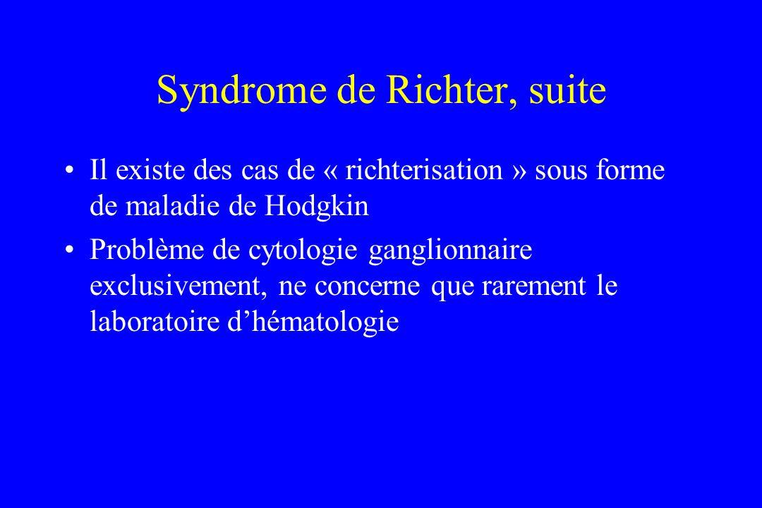 Syndrome de Richter, suite Il existe des cas de « richterisation » sous forme de maladie de Hodgkin Problème de cytologie ganglionnaire exclusivement,