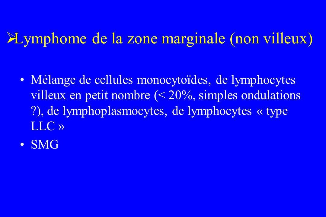 Lymphome de la zone marginale (non villeux) Mélange de cellules monocytoïdes, de lymphocytes villeux en petit nombre (< 20%, simples ondulations ?), d