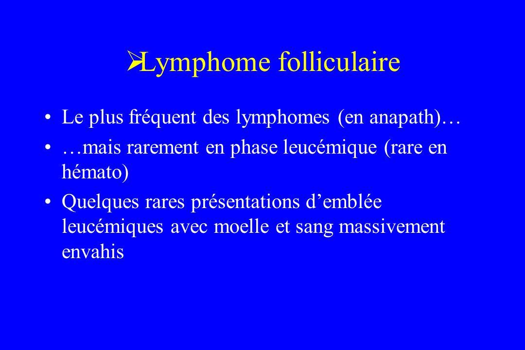 Lymphome folliculaire Le plus fréquent des lymphomes (en anapath)… …mais rarement en phase leucémique (rare en hémato) Quelques rares présentations de