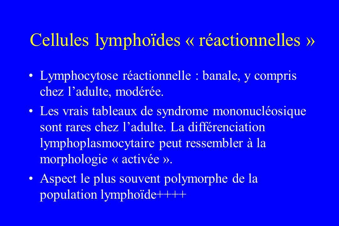 Cellules lymphoïdes « réactionnelles » Lymphocytose réactionnelle : banale, y compris chez ladulte, modérée. Les vrais tableaux de syndrome mononucléo