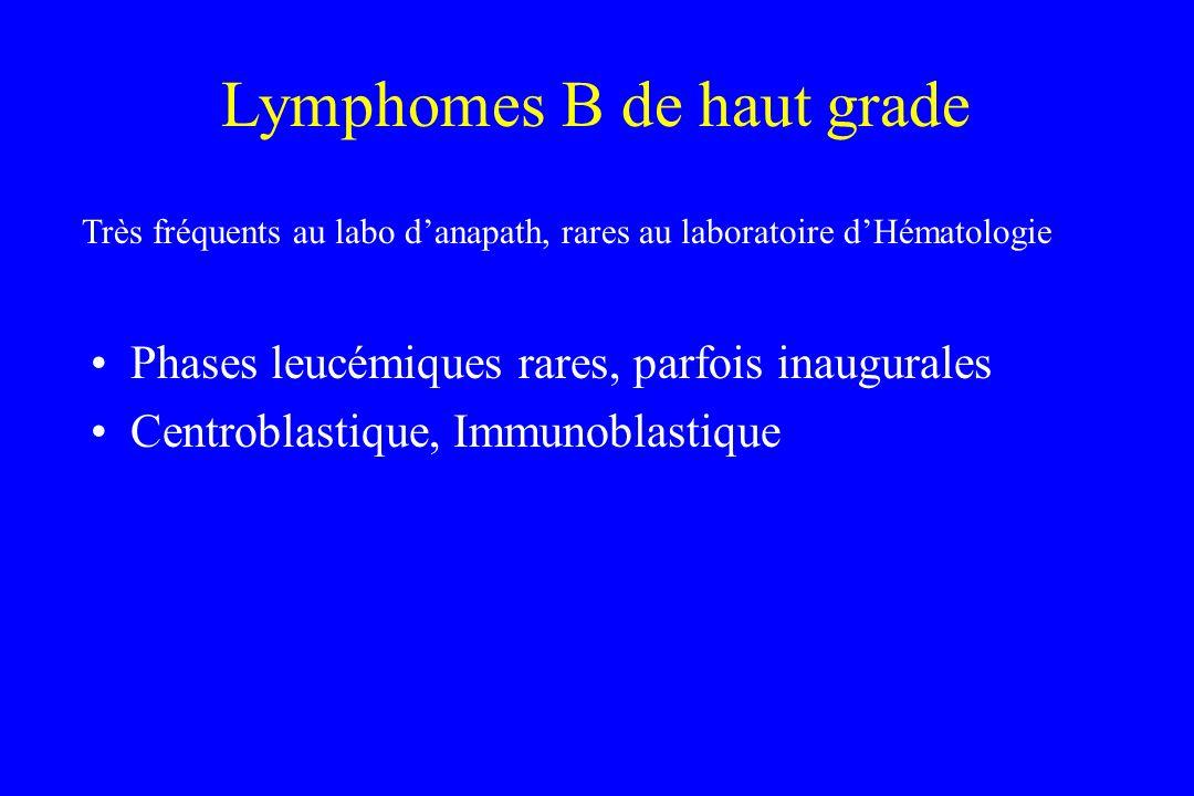 Lymphomes B de haut grade Phases leucémiques rares, parfois inaugurales Centroblastique, Immunoblastique Très fréquents au labo danapath, rares au lab