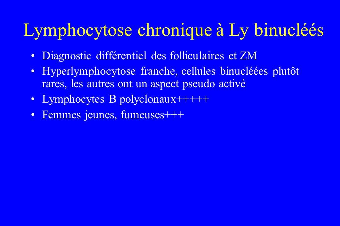Diagnostic différentiel des folliculaires et ZM Hyperlymphocytose franche, cellules binucléées plutôt rares, les autres ont un aspect pseudo activé Ly
