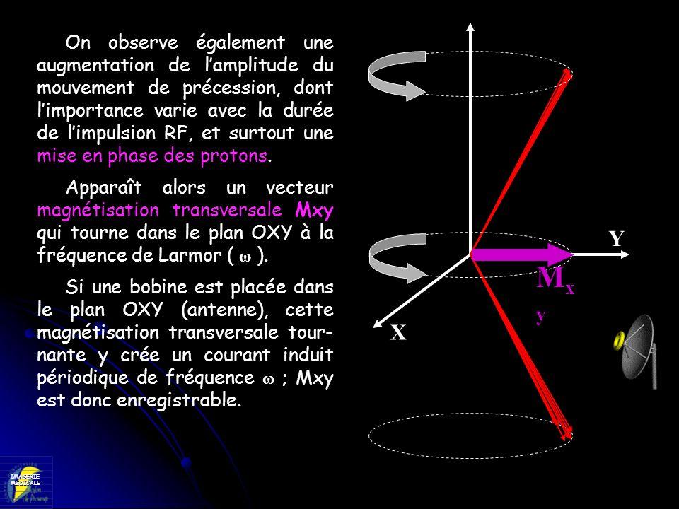 IMAGERIEMEDICALE X Y On observe également une augmentation de lamplitude du mouvement de précession, dont limportance varie avec la durée de limpulsio