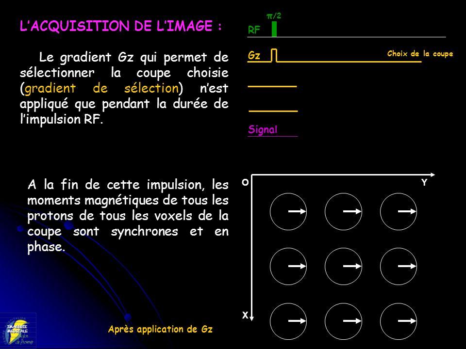 IMAGERIEMEDICALE LACQUISITION DE LIMAGE : Le gradient Gz qui permet de sélectionner la coupe choisie (gradient de sélection) nest appliqué que pendant
