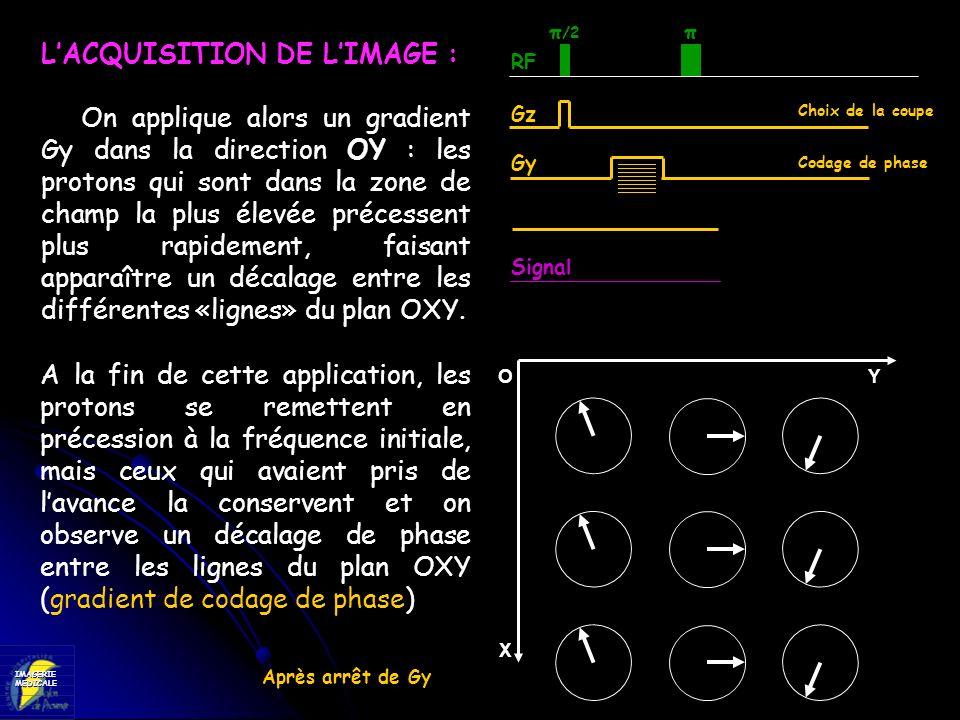 IMAGERIEMEDICALE RF Gz Signal π /2 Choix de la coupe LACQUISITION DE LIMAGE : On applique alors un gradient Gy dans la direction OY : les protons qui