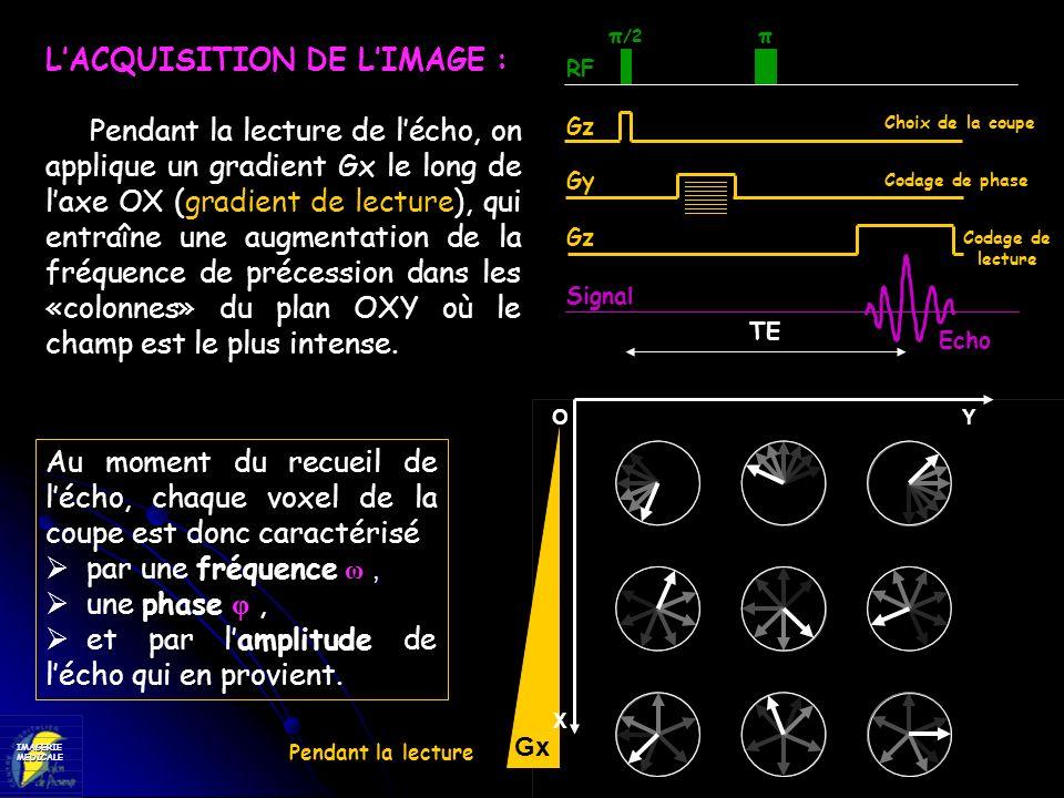 IMAGERIEMEDICALE RF Gz Gy Signal π /2 π Choix de la coupe Codage de phase LACQUISITION DE LIMAGE : Pendant la lecture de lécho, on applique un gradien
