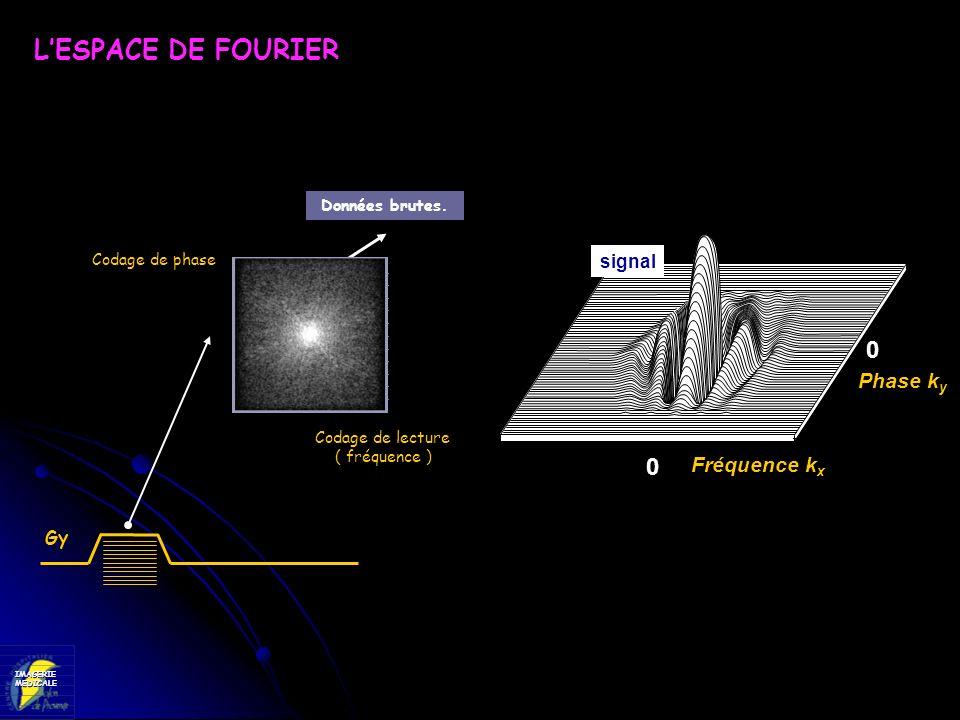 IMAGERIEMEDICALE LESPACE DE FOURIER Données brutes. Codage de phase Codage de lecture ( fréquence ) Gy