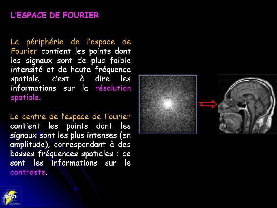 IMAGERIEMEDICALE LESPACE DE FOURIER La périphérie de lespace de Fourier contient les points dont les signaux sont de plus faible intensité et de haute