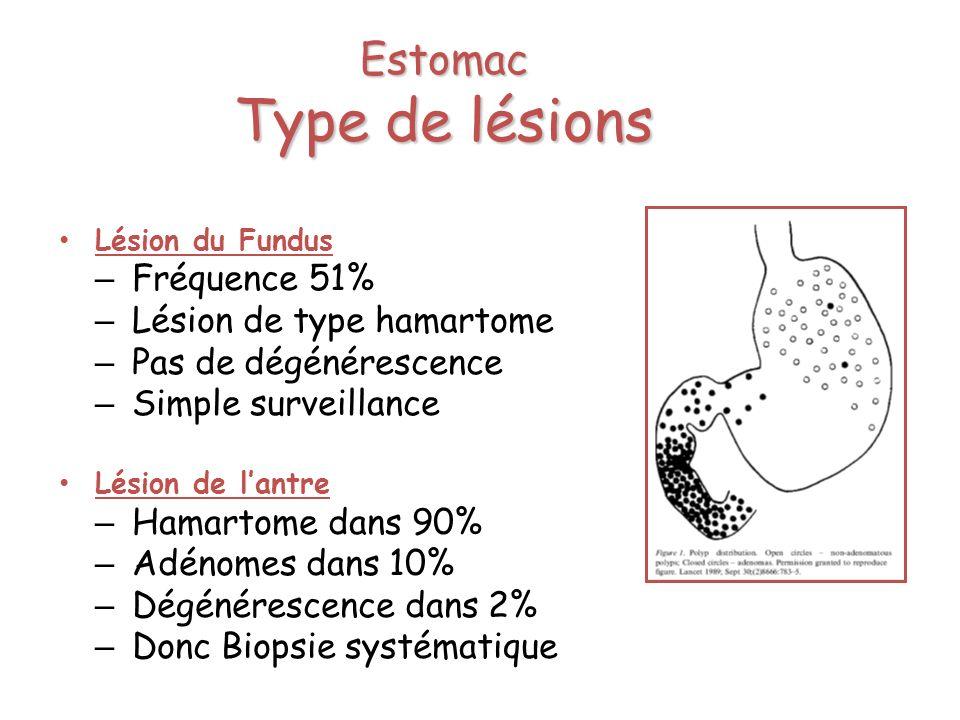 Estomac Type de lésions Lésion du Fundus – Fréquence 51% – Lésion de type hamartome – Pas de dégénérescence – Simple surveillance Lésion de lantre – H